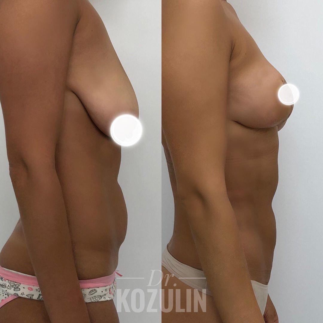 doc.kozulin_65766997_175964120098072_1725720544611111614_n