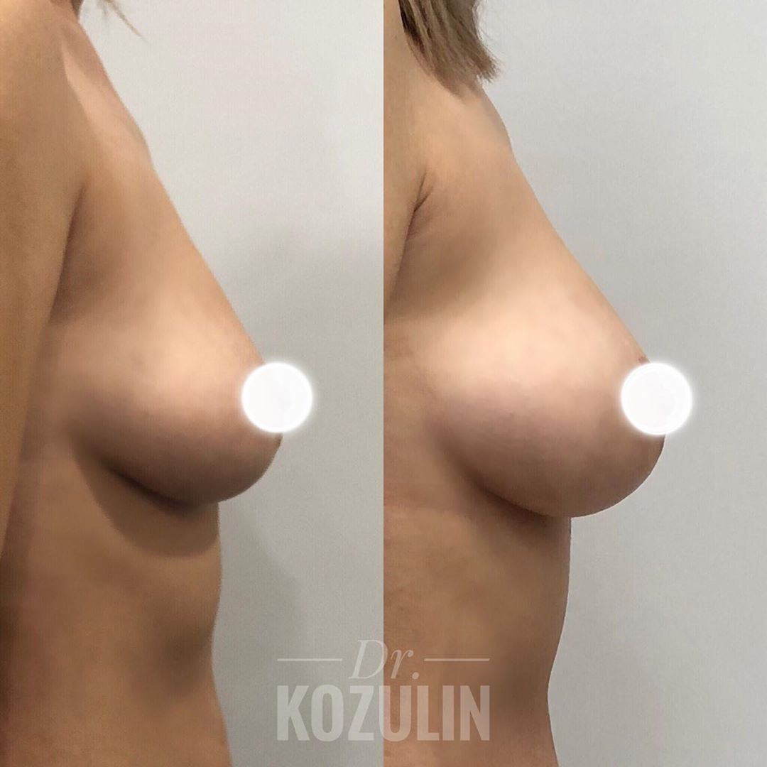 doc.kozulin_66777624_488548328569671_7035852901591083764_n
