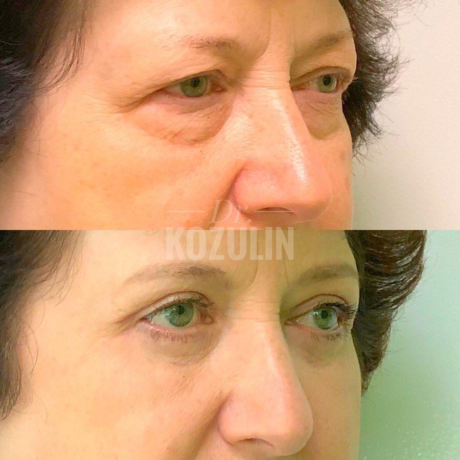 doc.kozulin_70320190_512561292861720_4173253682006331398_n